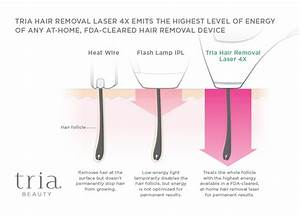 Tria Beauty Hair Removal Laser 4x Review