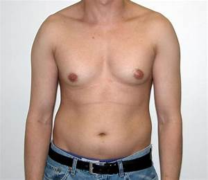 effects of anabolic steroids in males and females