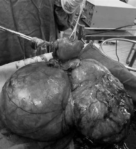 Total abdominal hysterectomy and right-sided salpingo ...