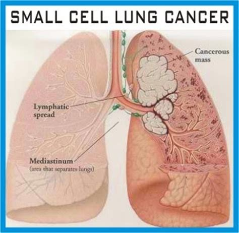 small cell lung cancer survival rate