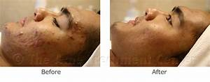 The gallery for --> Acne Fulminans Before And After