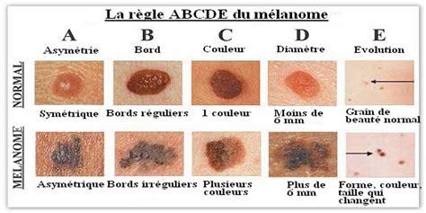 cancer peau photo on est en 233 t 233 il fait beau vous avez pens 233 au cancer de la peau