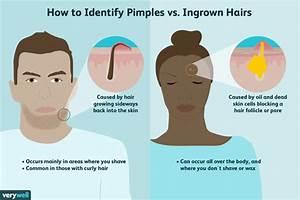 Ingrown Hair Dead Skin