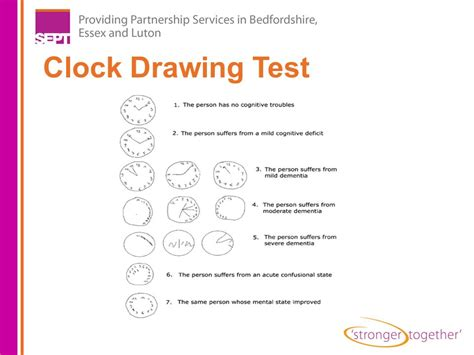 clock drawing test the diagnosis of dementia ppt