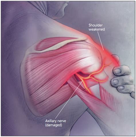 Axillary Nerve Injury Physiopedia