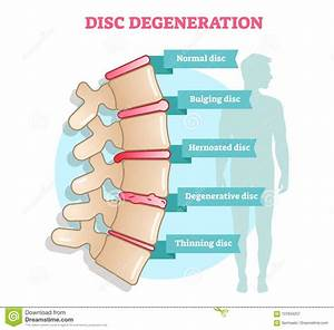 Disc Degeneration Flat Illustration Vector Diagram With