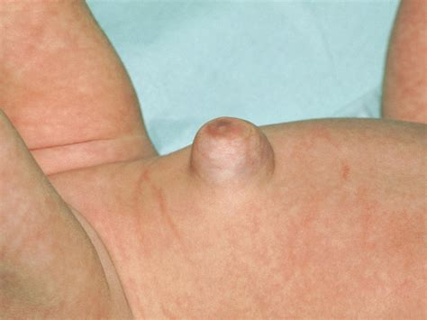 The Gallery For Umbilical Hernia Newborn