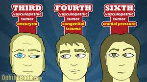 Cranial Nerve Palsy Patterns (Image)
