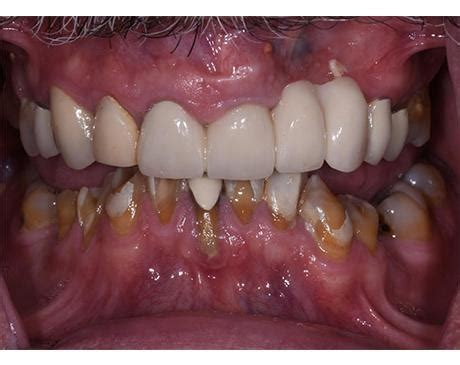 After a tooth extraction, there is a lot of bleeding from the tiny blood vessels within the gums and bone. Teeth-In-A-Day Specialist - Campbell, CA: Ueno Center Dental Specialists: Board Certified ...