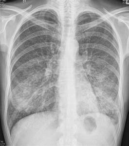 Atypical Pneumonia  Causes  Symptoms  Treatment Atypical