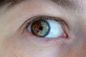 Most Rare Eye Color | Most Rare Eye Color Circles Site ...