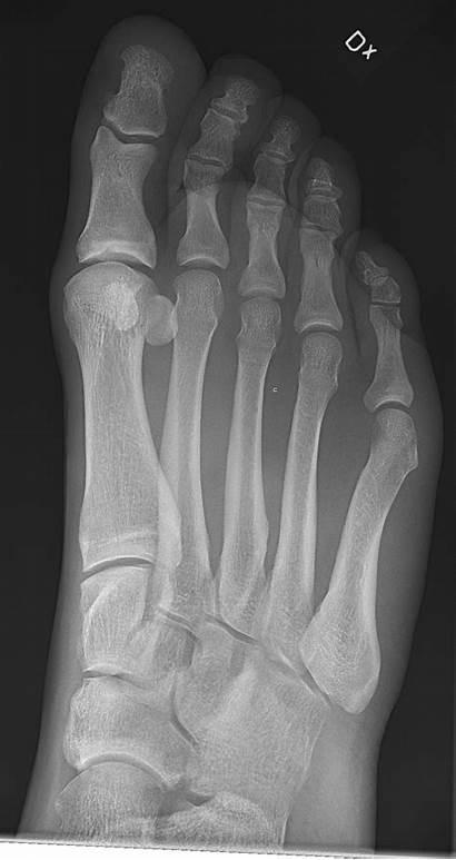 Foot Normal Buyxraysonline