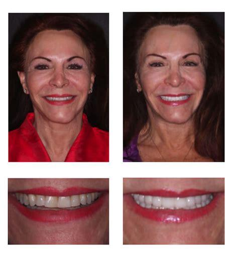 dentist fort lauderdale  international center