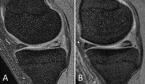 Mri Findings Of Case 1   A  Preoperatively  Horizontal
