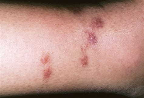 Spider Bite Images Spider Bites Pictures To Identify Spiders And Their Bites