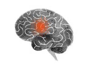 Stroke Brain Damage Symptoms