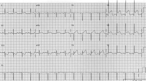 MKSAP Quiz: Evaluation for progressive chest pain | ACP ...