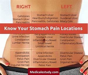 Find Out Locations Of Stomach Pains  Nursing Mnemonic