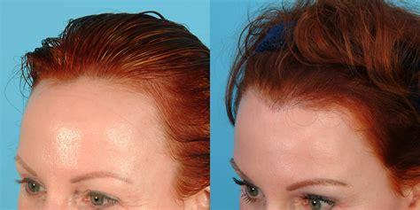 female hairline lowering hair transplant hair