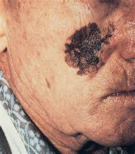 Melanoma Skin Cancer On Face