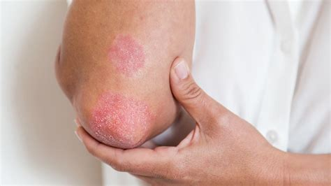 Common Skin Rashes Skin And Beauty Center Everyday Health