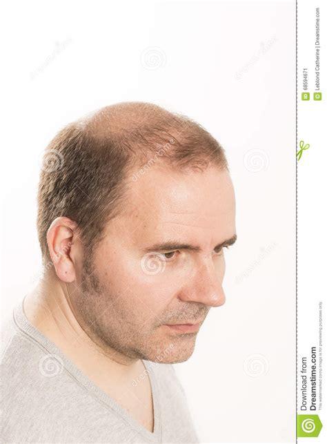 Haircare De Perte Des Cheveux D'homme D'alopécie De