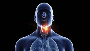 Persistent Sore Throat  U0026 39 Can Be Cancer Sign U0026 39