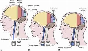 Intracranial Pressure  High Intracranial Pressure Causes