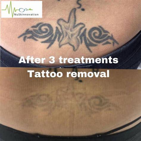 treatments tattoo removal nuskinnovation pty