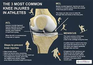 The 3 Most Common Knee Injuries In Athletes