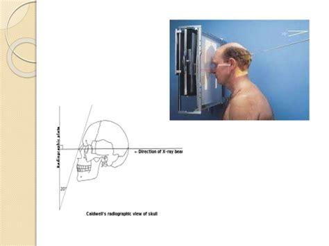 paranasal sinuses radiology nose fluid sphenoid