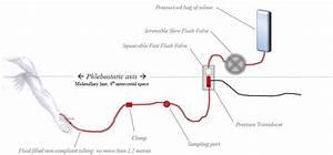 The Arterial Line Pressure Transducer Setup