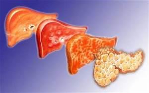 Какие препараты рассасывают кисты в печени