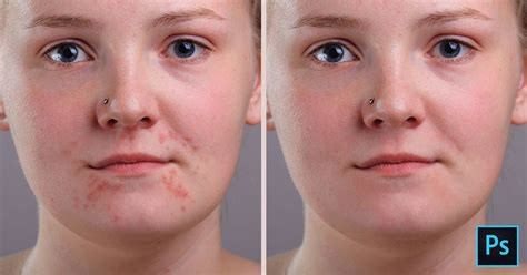Use Photoshop Free Without Remove Acne And Skin Blemishes In Photoshop Photoshop