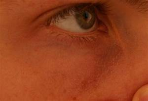 What are these bumps under and around my eyes and how do I ...