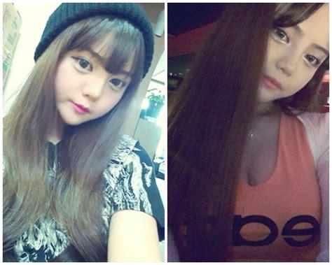 korean model   plastic surgery