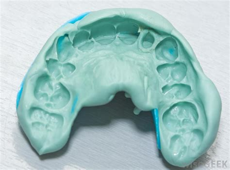 What Are Dental Impressions? (with Pictures