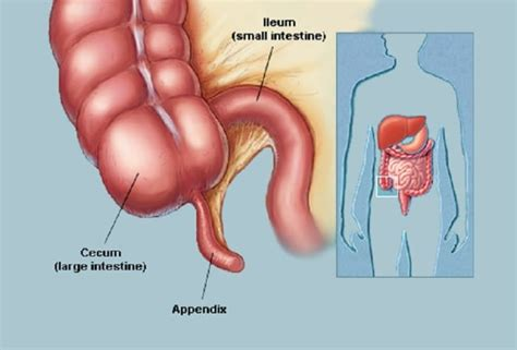 Sometimes, its placement is suggested by the. Appendix May Actually Have a Purpose : Human N Health