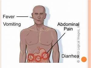 throat ulcer treatment symptoms