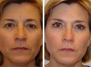 Гепариновая мазь в косметологии от морщин