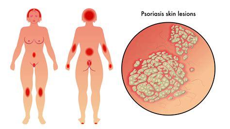 Bli av med psoriasis