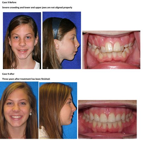 Dental Orthodontic Before And After Pictures In Kidron Oh