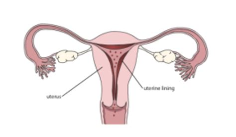 shedding of uterine lining endometrial ablation obstetrics gynecology associates