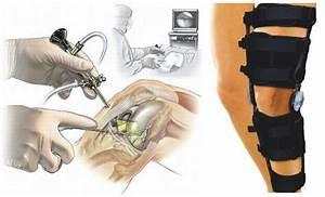 После артроскопии коленного сустава болит