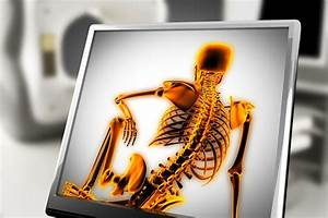 Spinal Cord Stimulation  Advantages And Risks And Who Is A Candidate
