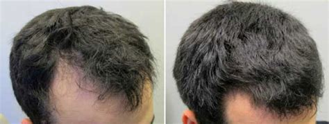Beta Sitosterol Hair Loss, Dosage, with Saw Palmetto