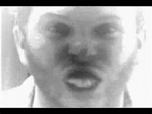 Crazy Rabies Dog Man - YouTube