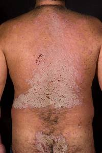 A 41 Year Old Man With An Itchy Rash
