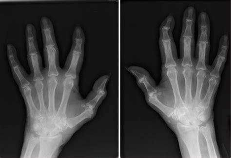 ray   hands showing juxta articular osteopenia