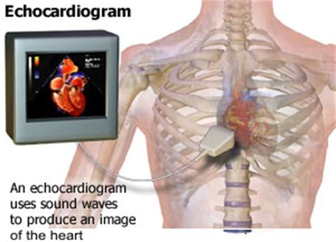 test echo echocardiogram studies hamilton cardiology associates